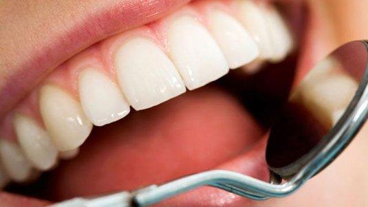 implant-dentar